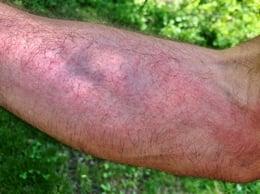 Poison Ivy rash on arm